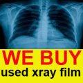 نشترى افلام اشعة مستعملة صناعية و تالفة بكميات كبيرة